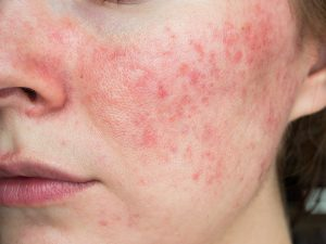 Woman suffering from rosacea